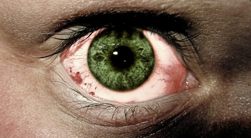 Eye Age-Related Diseases